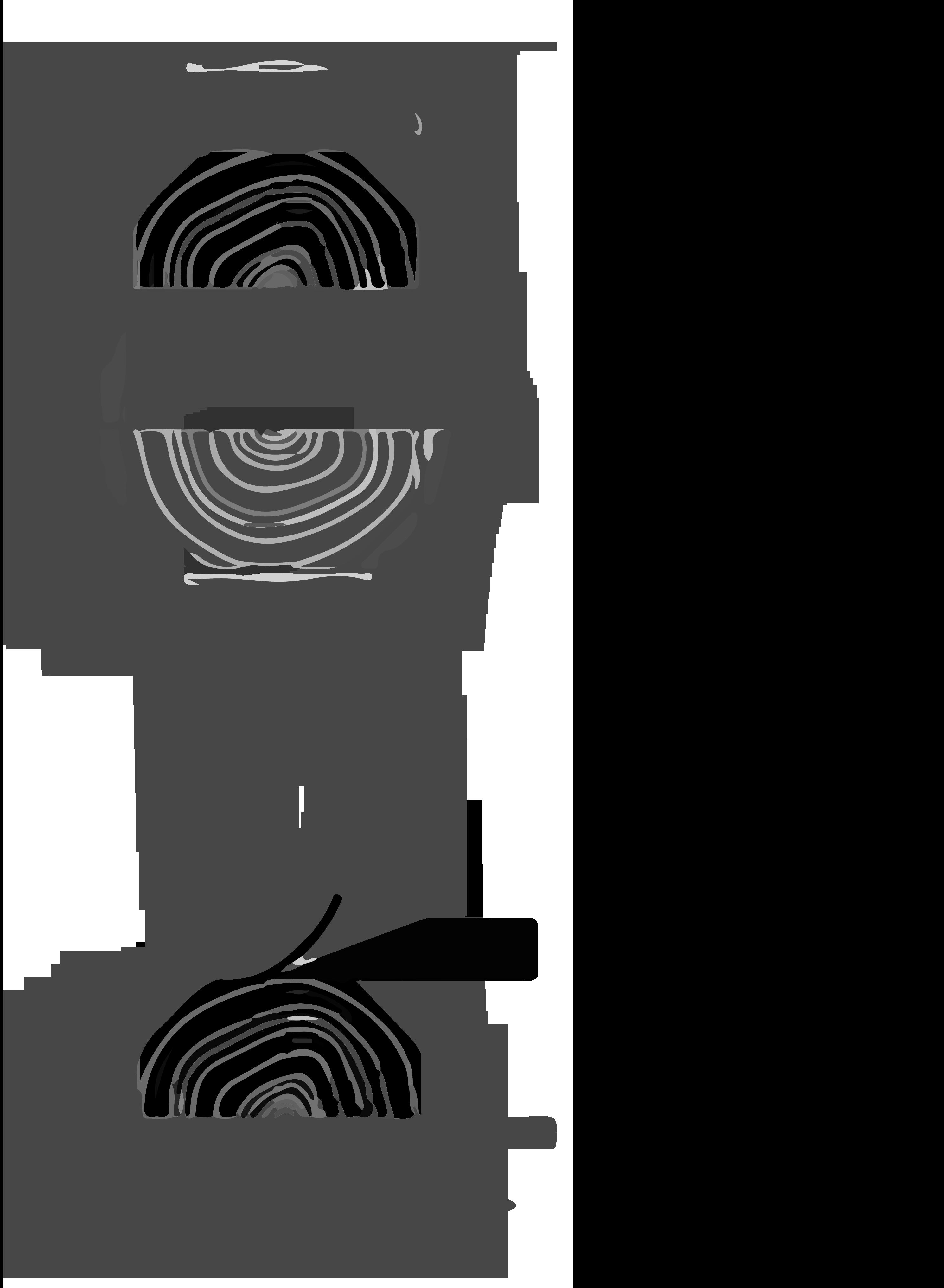Veneer Crown Cut Technique Labos